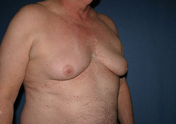 Gynecomastia Before & After Patient #1947