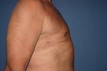 Gynecomastia Before & After Patient #1955