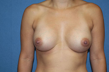 Breast Augmentation with Implant Before & After Patient #1860