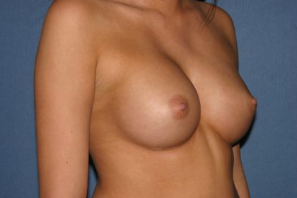 Breast Augmentation with Implant Before & After Patient #2166