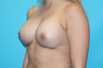 Breast Augmentation with Implant Before & After Patient #1853
