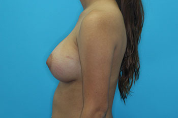 Breast Augmentation with Implant Before & After Patient #1871
