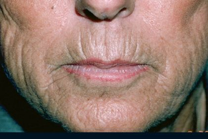 Laser Resurfacing Before & After Patient #2315