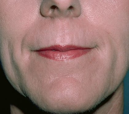 Laser Resurfacing Before & After Patient #2321