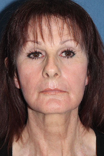 Laser Resurfacing Before & After Patient #2035