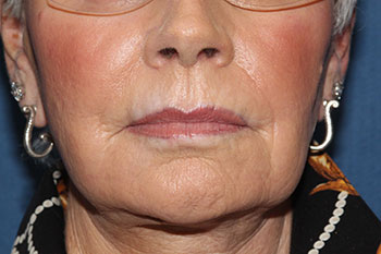 Laser Resurfacing Before & After Patient #2038
