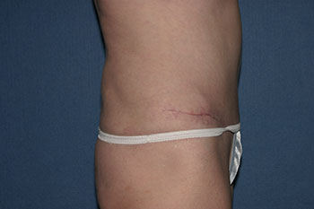 Tummy Tuck (Lipoabdominoplasty) Before & After Patient #1793