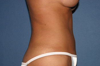 Tummy Tuck (Lipoabdominoplasty) Before & After Patient #1785