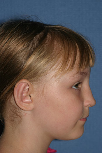 Otoplasty (Ear Pinning) Before & After Patient #2047