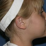 Otoplasty (Ear Pinning) Before & After Patient #2054