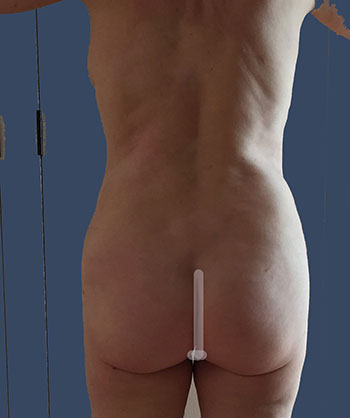 Power Assisted Liposuction Before & After Patient #1819