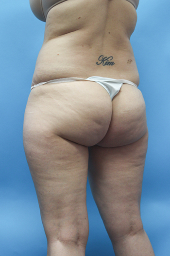 Power Assisted Liposuction Before & After Patient #2155
