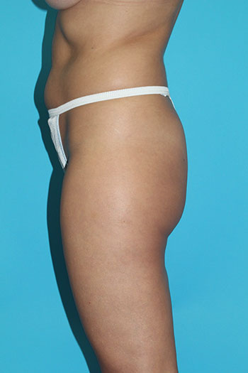 Power Assisted Liposuction Before & After Patient #1829