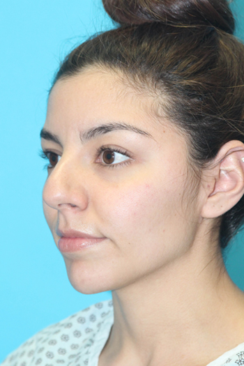 Rhinoplasty Before & After Patient #2120