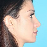 Rhinoplasty Before & After Patient #2080