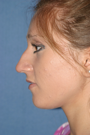 Rhinoplasty Before & After Patient #2090