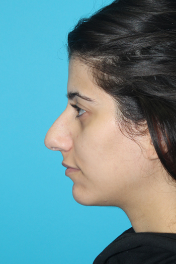 Rhinoplasty Before & After Patient #2106
