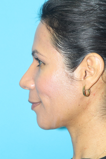 Rhinoplasty Before & After Patient #2127