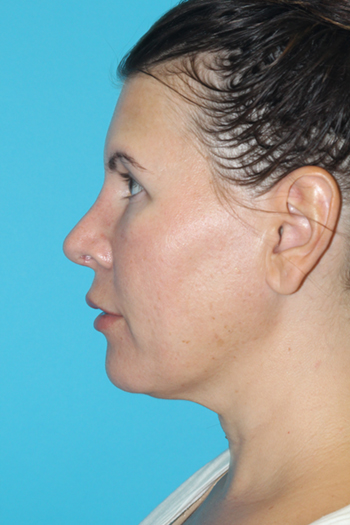 Rhinoplasty Before & After Patient #2134