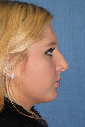 Rhinoplasty Before & After Patient #2141
