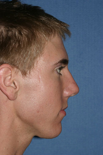 Rhinoplasty Before & After Patient #2073