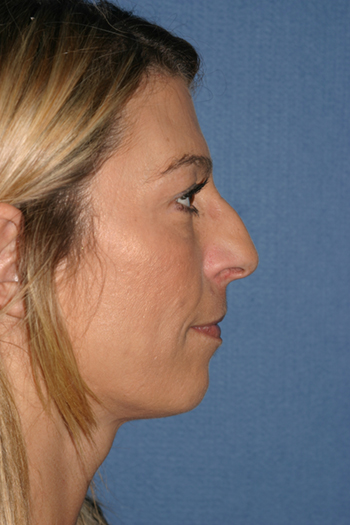 Rhinoplasty Before & After Patient #2097