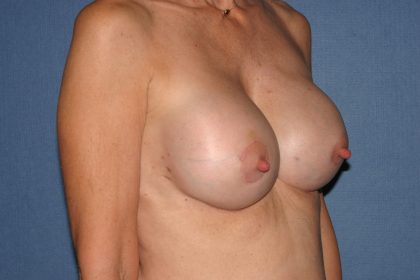 Breast Deformity Correction Before & After Patient #2199