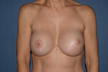 Breast Deformity Correction Before & After Patient #2212