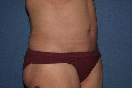 Body Lift Before & After Patient #2174