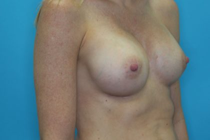 Breast Lift with Augmentation Before & After Patient #2250