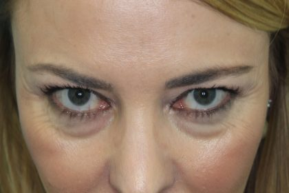 Eyelid Before & After Patient #2245