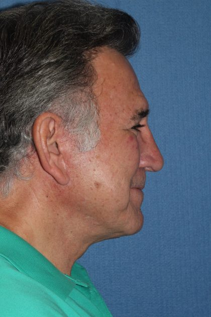 Facelift Before & After Patient #2343