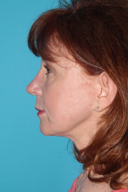 Facelift Before & After Patient #2495