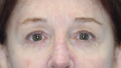 Eyelids and Periorbital Fat Before & After Patient #2490