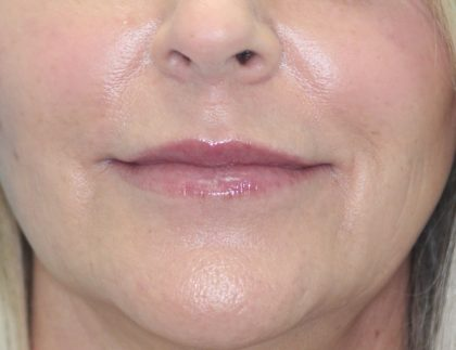 Croton Peel Before & After Patient #2482