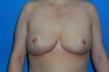 Internal Mastopexy (Breast Lift) with Implant Removal Before & After Patient #3208