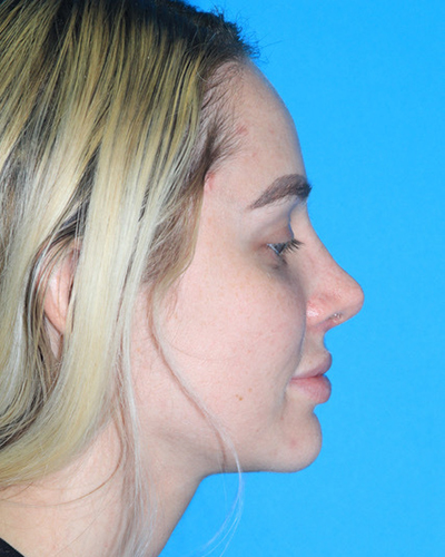 Rhinoplasty Before & After Patient #3161
