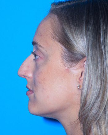 Rhinoplasty Before & After Patient #3186